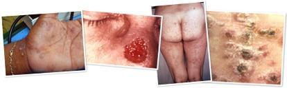 View syphilis 1