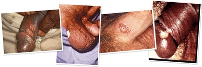 View syphilis 6