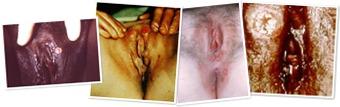 View syphilis 9