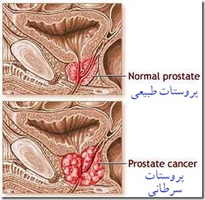 prostate cancer 2