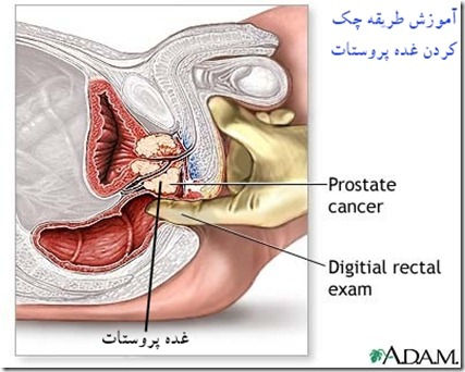 prostate cancer (4)