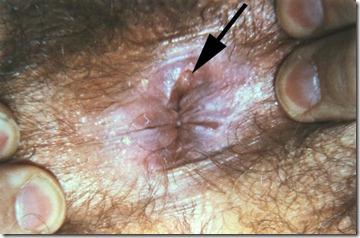 syphilis (7)